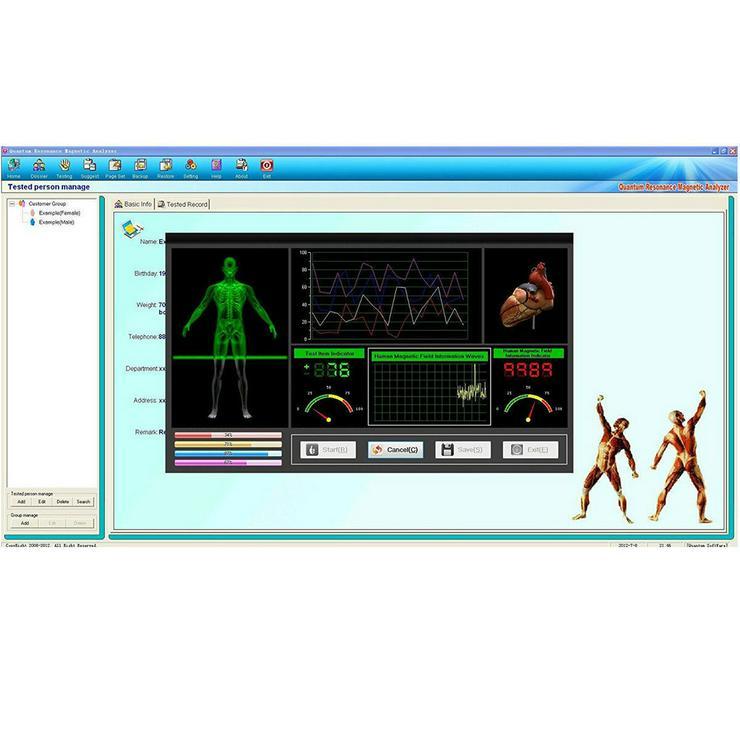 Körper- & Vitalitätsanalyse, Bio Scan Analyse