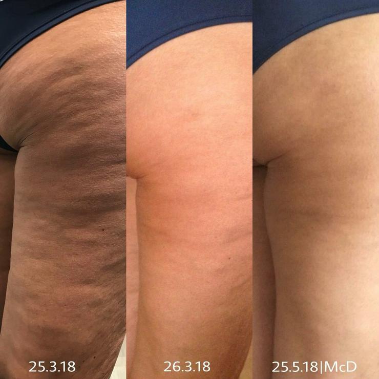 Cellulite war gestern -