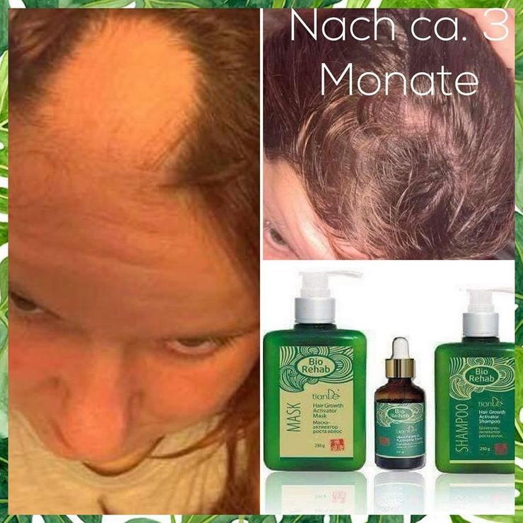 Bild 5: Haar-Wachstum-Aktivierungs Serie Bio Rehab tianDE- ohne Sulfate und Parabene