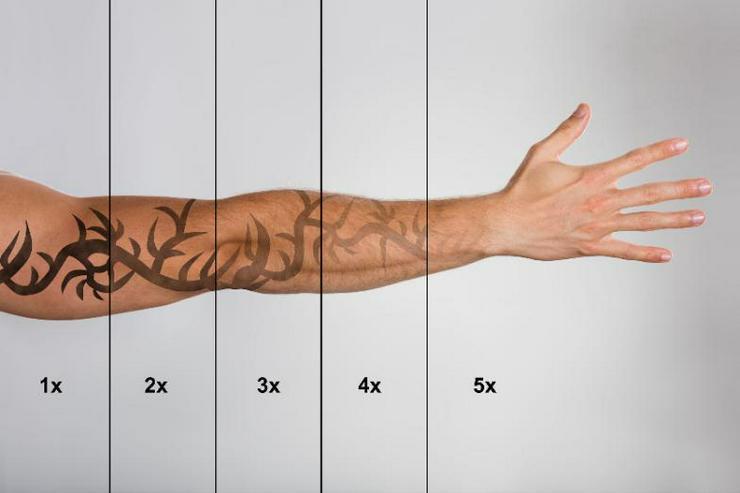 Schulung Grundlagen der Tattooentfernung mit Nd :YAG Laser