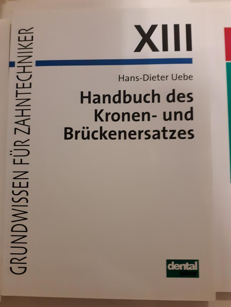 """Fachbuch für Zahntechniker """"Handbuch des Kronen- und Brückenersatzes"""" zu verkaufen"""
