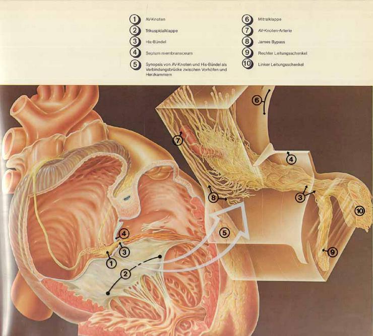 Bild 4: Exempla Cardiologica Herzrhythmus und Herzrhythmusstörungen - Wirtzfeld & Bräuer