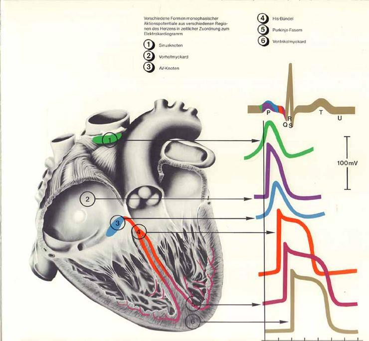 Bild 3: Exempla Cardiologica Herzrhythmus und Herzrhythmusstörungen - Wirtzfeld & Bräuer