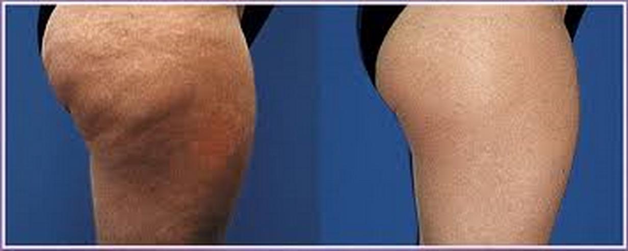Bild 3: Maschinelle Lymphdrainage/Anti-Cellulite Behandlung