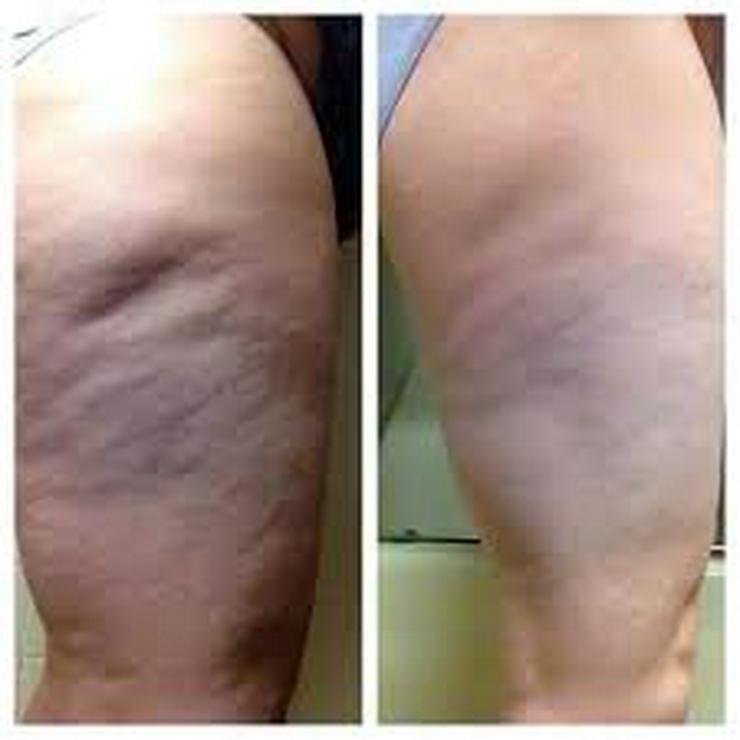 Bild 2: Maschinelle Lymphdrainage/Anti-Cellulite Behandlung
