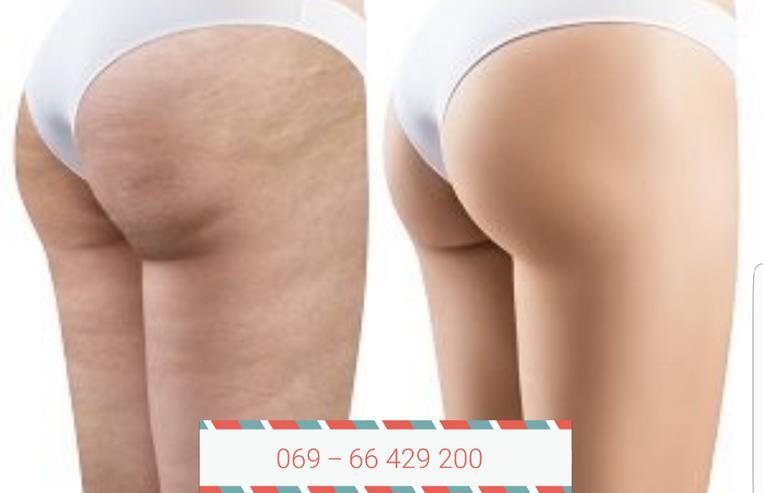 Cellulite & Dellen loswerden! Madero Therapie Massage Holzwalzen * Gutschein*