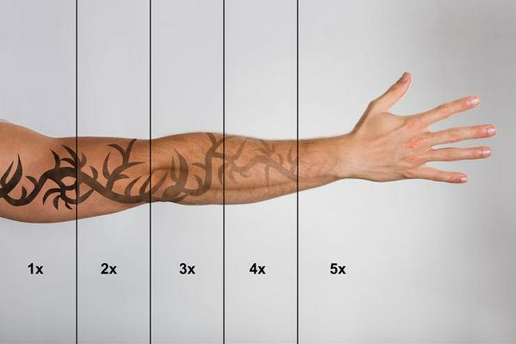 Schulung Grundlagen der Tattooentfernung mit Nd: YAG Laser