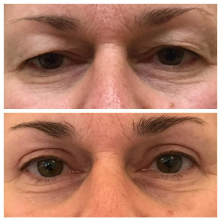 Bild 2: Augenlidstraffung, Schlupflider , Tränensäcke entfernung.