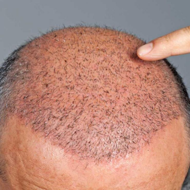 Haartransplantationen in Istanbul inkl. Hotel und Flughafentransfer